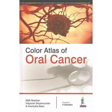Color Atlas of Oral Cancer - Cancer Color