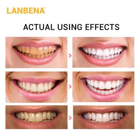 1Pcs LANBENA Whitestrips Daily Use Non-Stimulating Anti-Sensitive Advanced Whitening Strips Useful Oral Tooth Care - image 6 of 7