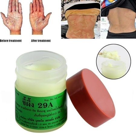 Psoriasis Cream Chinese Herbal Antibacterial Eczema Treatment Psoriasis Anti-itching