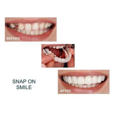 FAGINEY Silica Gel Temporary False Teeth Cover Whitening Set False Fake Tooth Kit, Temporary Tooth Replacement, Fake Tooth Set Fake Gold Tooth Teeth