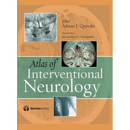 Atlas of Interventional Neurology (Hardcover) ()