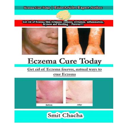 Eczema Cure Today: Get Rid of Eczema Forever, Natural Ways to Cure Eczema - (Fastest Way To Get Rid Of Scabies)