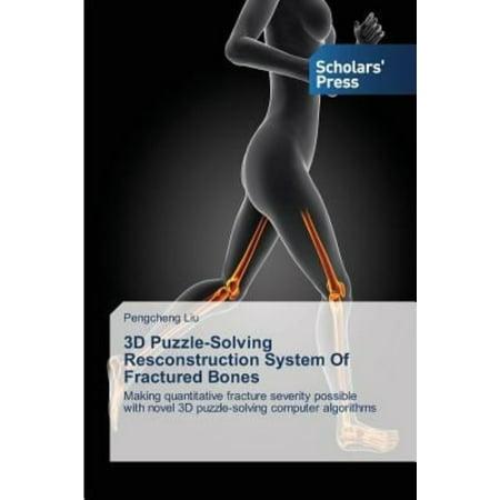 3D Puzzle Solving Resconstruction System Of Fractured Bones