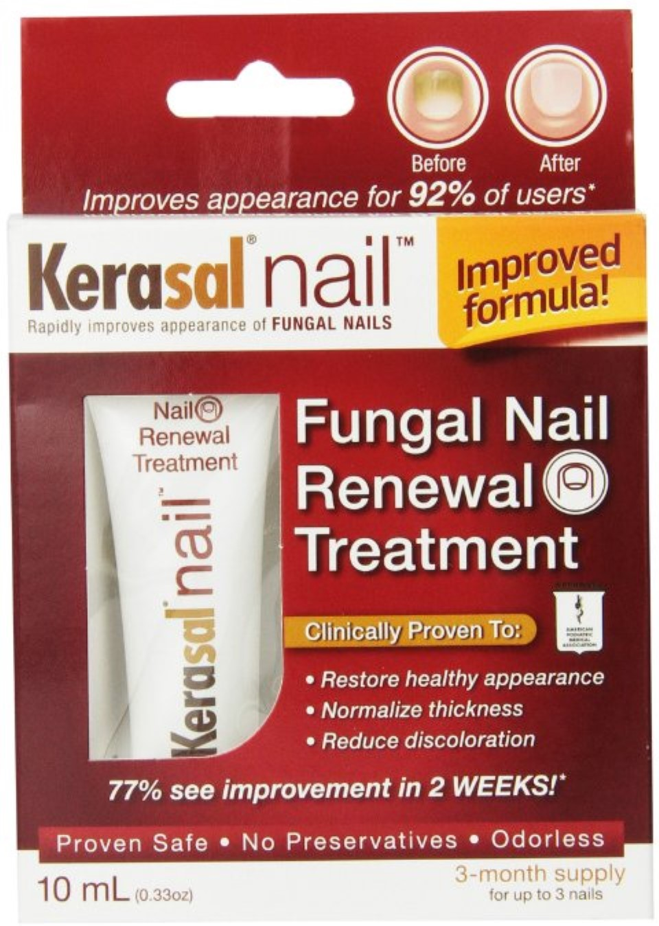 Kerasal Nail Fungal Nail Renewal Treatment 0.33 oz - Walmart.com