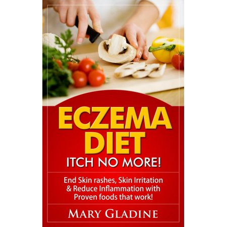 Eczema Diet: Itch No More! End Skin rashes, skin irritation & reduce inflammation with A Low Inflammation Diet & Proven foods that work! BONUS know what to avoid! - (Low Uric Acid Diet Foods To Avoid)