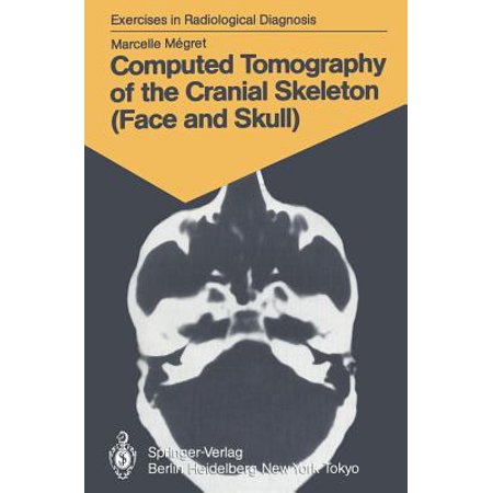 Computed Tomography of the Cranial Skeleton (Face and Skull) : 58 Radiological Exercises for Students and