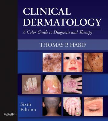 Clinical Dermatology : A Color Guide to Diagnosis and Therapy