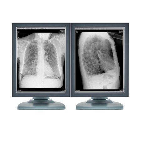 Pair (x2) Barco® Coronis MFGD-3420 3MP Grayscale Medical Diagnostic Radiology Monitors (V9600400)