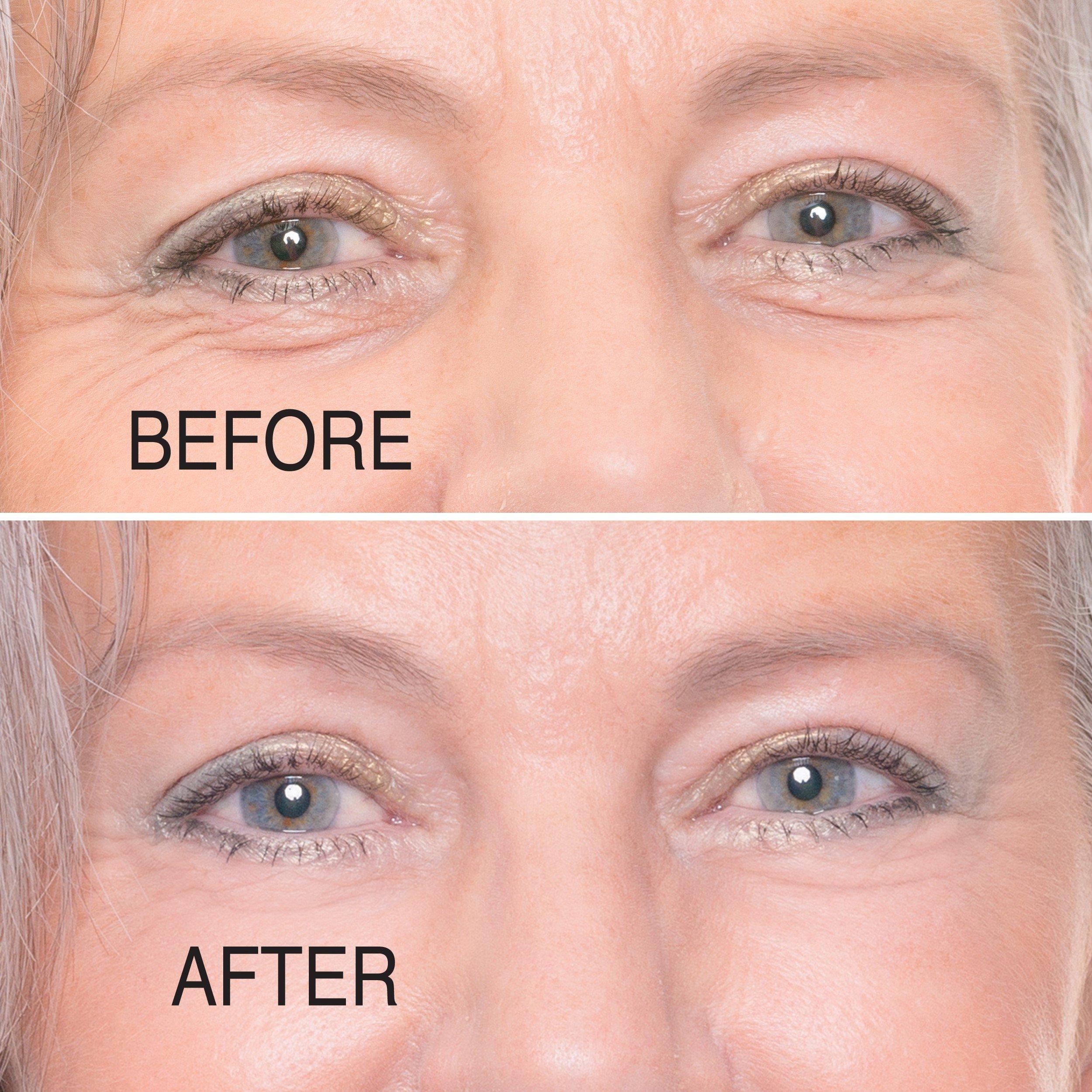 eye tightening cream