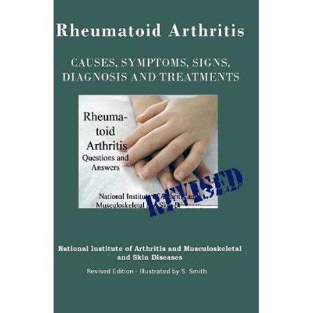 Rheumatoid Arthritis  Causes  Symptoms  Signs  Diagnosis And Treatments