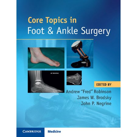 Core Topics in Foot and Ankle Surgery - eBook