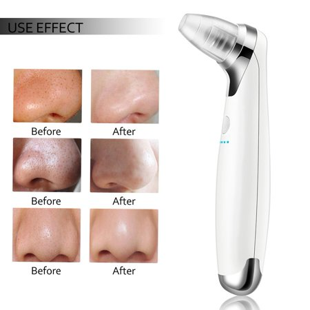 Yosoo Electric Blackhead Suction Removal LED Light Acne Pore Cleaner Skin Care Device - image 7 of 7
