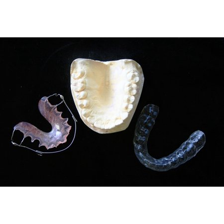 LAMINATED POSTER Aids Mouth Guard Orthodontic Dental Mould Plate Poster  Print 24 x 36