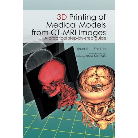 Printing Module (3D Printing of Medical Models from Ct-Mri Images - eBook)