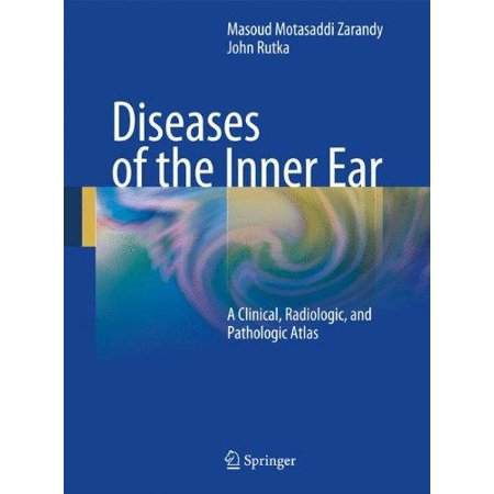 Diseases Of The Inner Ear  A Clinical  Radiologic And Pathologic Atlas