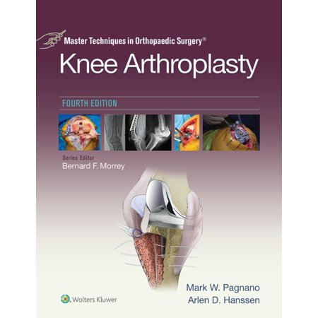 Master Techniques in Orthopedic Surgery: Knee Arthroplasty -