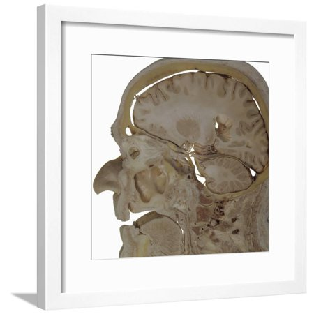 The Human Head and Brain in Sagittal Section Revealing the Position of the Brain, Brainstem Framed Print Wall Art By Ralph Hutchings (Sagittal Section Brain)
