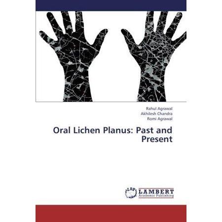 Oral Lichen Planus  Past And Present