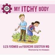 My Itchy Body - eBook