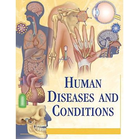 Human Diseases and Conditions - Walmart.com