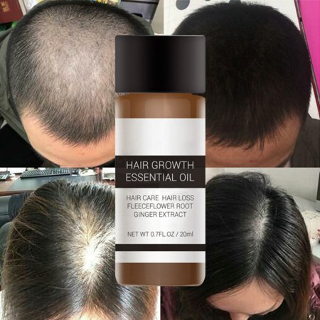 Fast Powerful Hair Growth Essence Products Essential Oil Liquid Treatment Preventing Hair Loss Hair Care