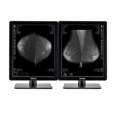 Pair (x2) Barco® Nio MDNG-5221 5MP Grayscale LED Digital Mammography Diagnostic Monitor (K9602733)