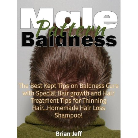 Male Pattern Baldness: The Best Kept Tips on Baldness Cure with Special Hair growth and Hair Treatment Tips for Thinning Hair...Homemade Hair Loss Shampoo! -