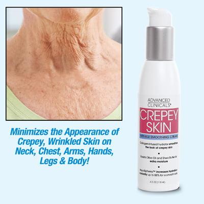 Crepey Skin Repair Treatment Cream