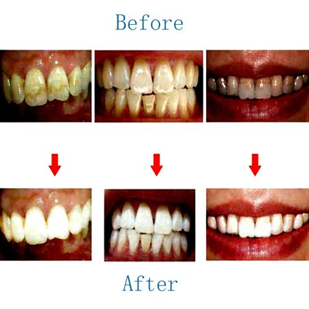 Toothpaste Whitening Teeth Care Remove Halitosis Plaque Dentifrice Cleaning