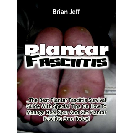 Plantar Fasciitis: The Best Plantar Fasciitis Survival Guide With Special Tips On How To Manage Heel Spur And Get Plantar Fasciitis Cure Today! -
