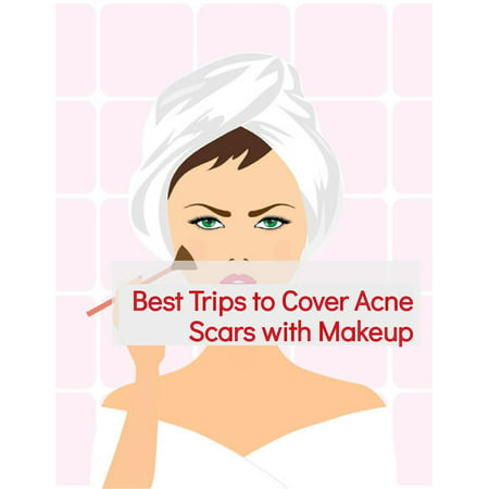 Best Trips to Cover Acne Scars with Makeup - (Best Makeup To Cover Acne Scabs)