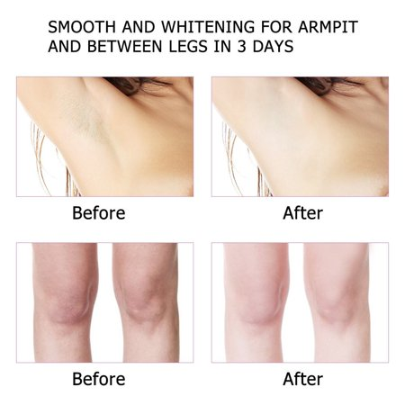 2 Pack Body Whitening Cream for Sensitive Area Armpit Legs Knees Private Part