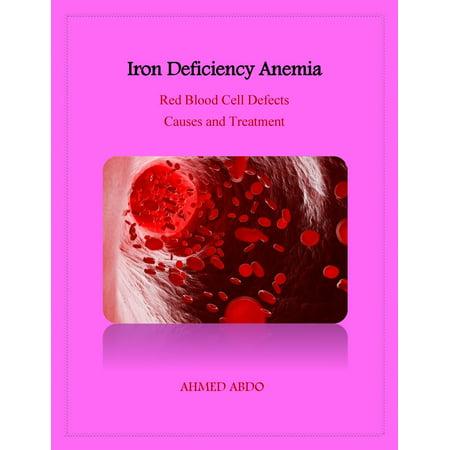 Iron Deficiency Anemia - eBook