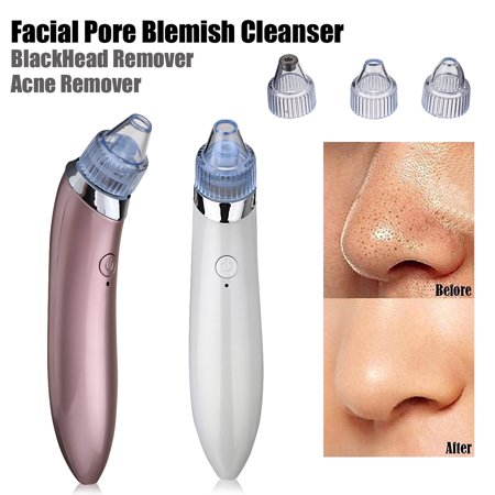Black Head Extractor (New Blackhead Remover, USB Rechargeable Blackhead pore Vacuum Suction Remover, Electric Skin Cleanser Blackhead Extractor Tool, Skin Pore Cleaner with 4 Replaceable Suction Heads)