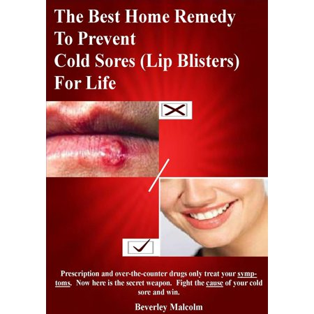 The Best Home Remedy To Prevent Cold Sores (Lip Blisters) For Life - (Best Sleeping Position For A Sore Back)