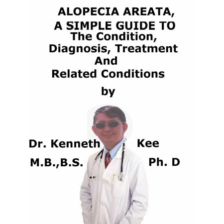 Alopecia Areata, A Simple Guide To The Condition, Diagnosis, Treatment And Related Conditions -