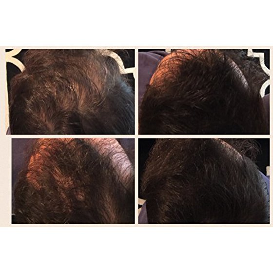 927aebd7c149 LUXE Hair Thickening Fibers with Natural Keratin-2 Months+  Supply!-Confidence in a Jar! - Dark Brown - Multiple Colors Available