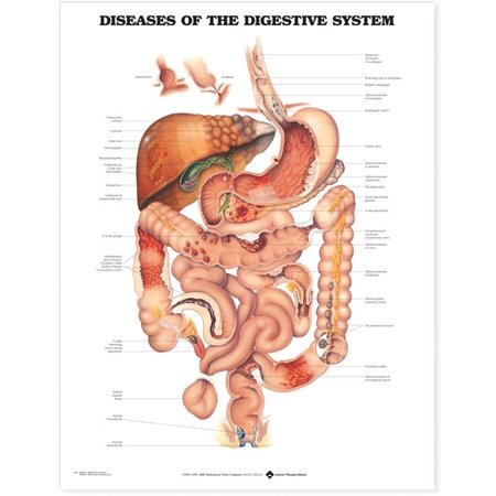 Diseases of the Digestive System Anatomical Chart (Organs That Make Up The Digestive System)