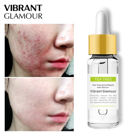 VIBRANT GLAMOUR Tea Tree Acne Repair Face Serum Scar Acne Treatment Oil Control