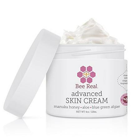 Best Skin Cream Natural Solution for stretch marks sensitive skin rashes (Best Cream For Heat Rash)