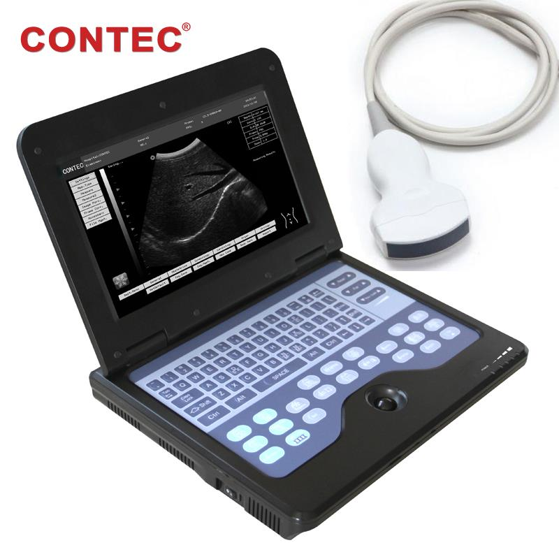 Ultrasound Portable laptop machine Digital B-Ultrasound scanner,3.5 Convex probe
