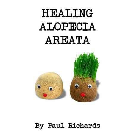 Healing Alopecia Areata - eBook