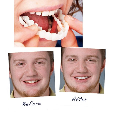 Snap On Smile Instant Perfect Smile Comfort Fit Flex Teeth