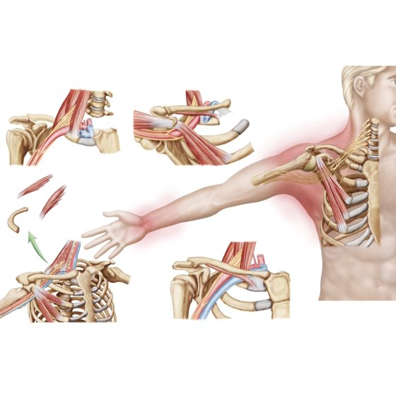 Medical illustration detailing thoracic outlet syndrome Poster Print ...