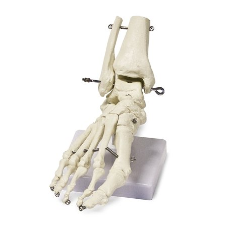 Vision Scientific Foot Skeleton Model