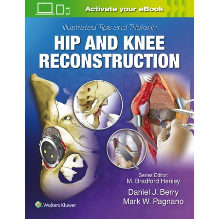 Illustrated Tips and Tricks in Hip and Knee Reconstructive and Replacement