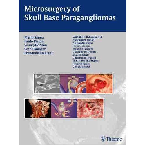 Microsurgery of Skull Base Paragangliomas