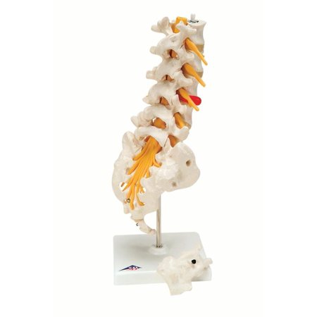 Scale Model Lumber (Anatomical model: lumbar spinal column w/dorso-lateral prolapsed disc )