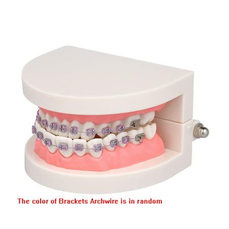 Modèle dentaire de mallocclusion orthodontique avec des supports Modèle de dents de tube buccal Archwire pour la communication patiente Enseignement des adultes - image 3 of 6