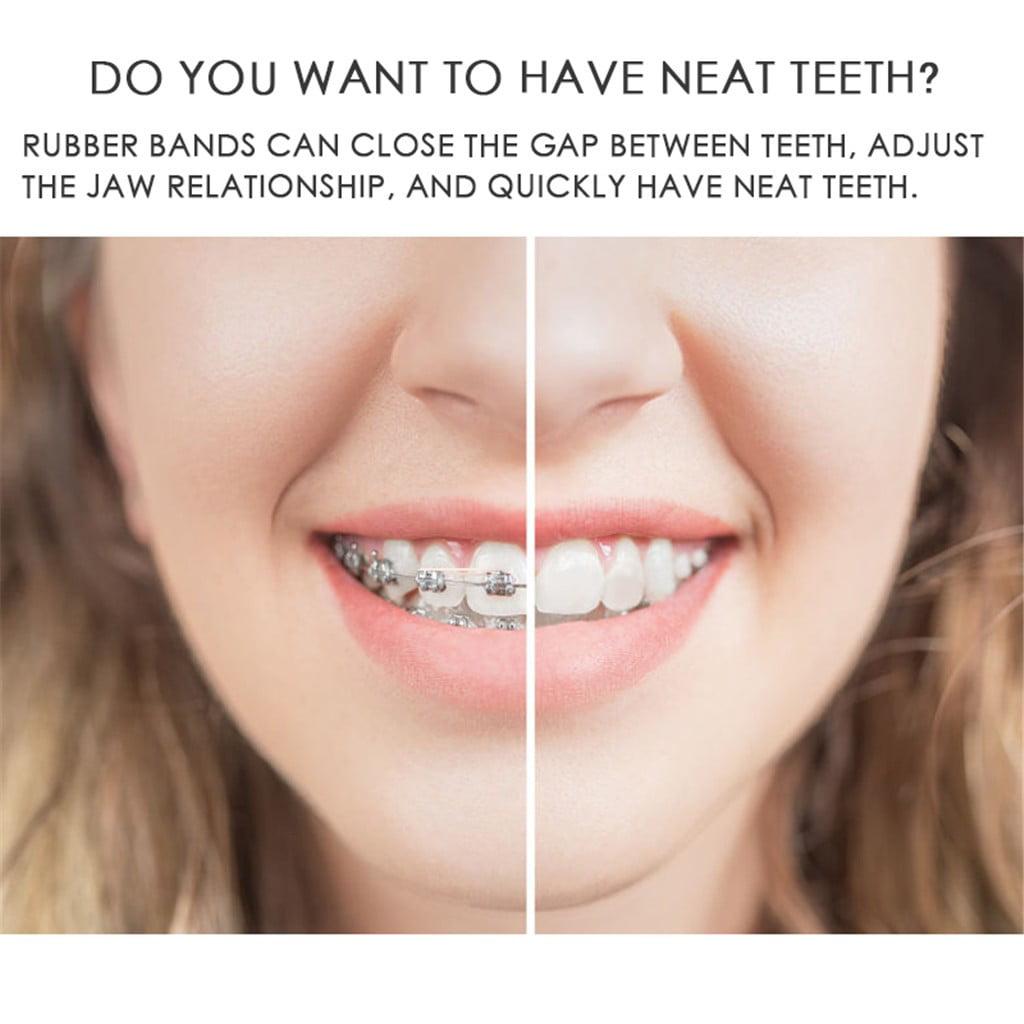 100 Pcs Dental Rubber Bands Orthodontic Elastics Braces Teeth Gap